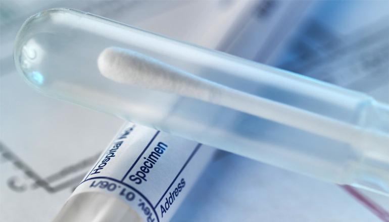 Rape Kit or DNA Testing
