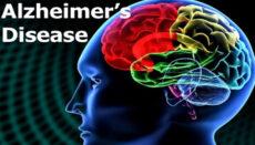 Alzheimers Disease News Graphic